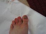 Messy big toe.