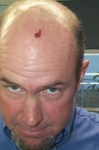 """Hole in head: (see """"Downhill Lunch"""" video in the Video gallery)"""